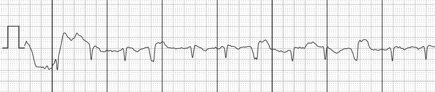 Graph showing unspecified lead of a 1-lead-ECG