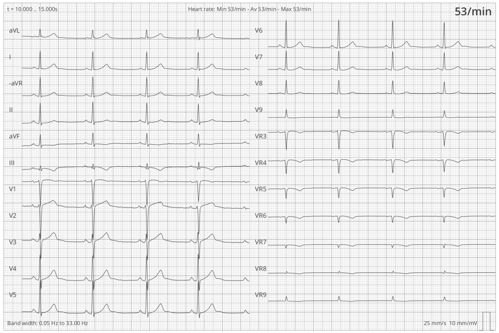 Graph showing the leads (I, II, III, aVR, aVL, aVF, V1-V9, VR2-VR9) of a 12-lead-ECG