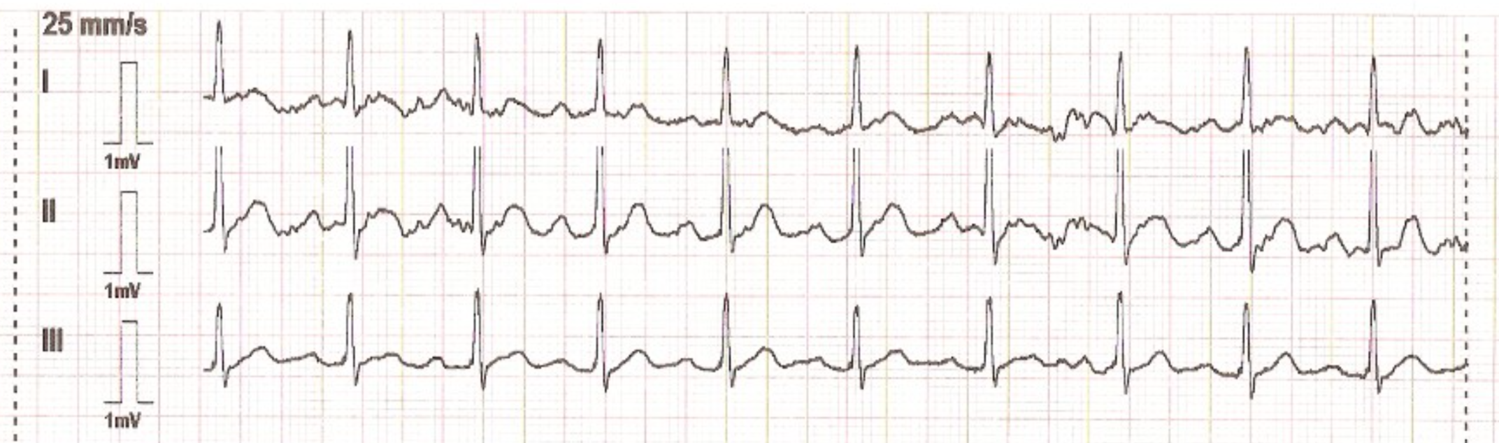 Lead systems – how an ECG works | CardioSecur