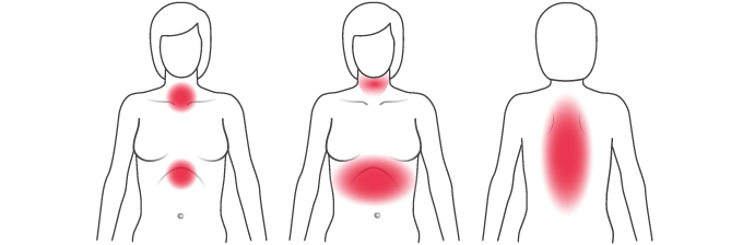 Illustration of common physical signs of heart attack signs in women