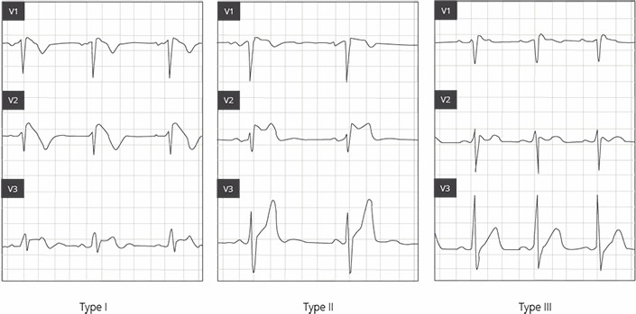 Brugada syndrome: reliably diagnosed only by means of an ECG