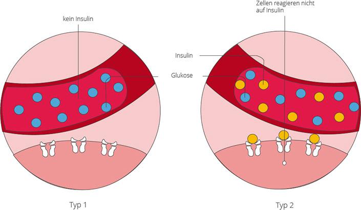 Diabetes mellitus - Ernährung und Einfluss auf das Herz ...
