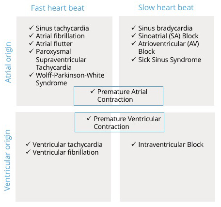 A table with common arrhythmias