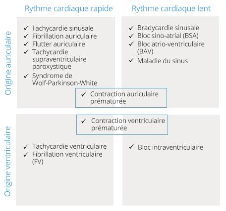 Troubles du rythme cardiaque (arythmies) - CardioSecur