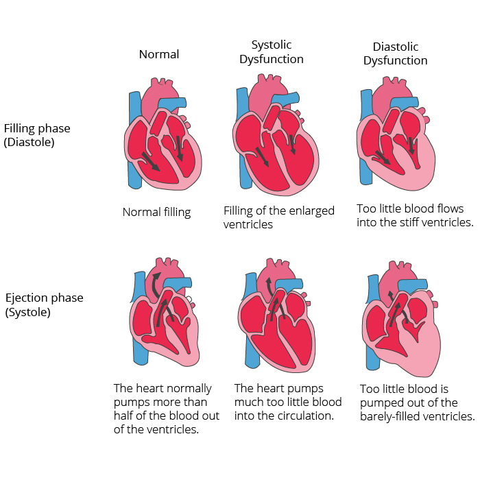 Graphical representation of a healthy heart compared to systolic dysfunction and diastolic dysfunction