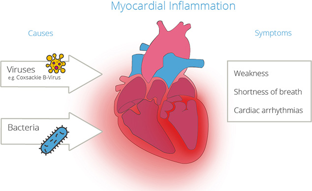 Viruses and bacteria: the cause of infectious heart muscle inflammation
