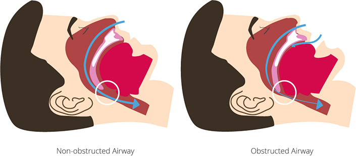 Obstructive sleep apnea due to obstructed airway