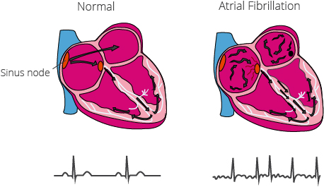 With atrial fibrillation, electrical impulses are transmitted uncontrollably