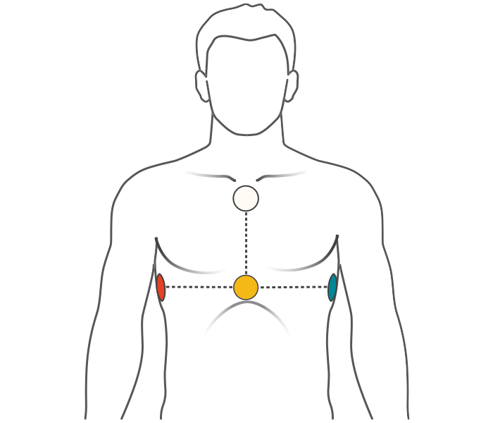 Image of position of electrodes on upper body