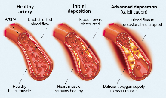 Levels of deposits in the arteries and their possible consequences