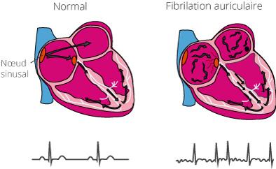 En cas de fibrillation auriculaire, les impulsions électriques générent des contractions désordonnées