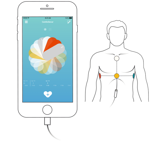 Illustration de l'enregistrement ECG dans l'application CardioSecur Active