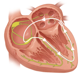 Diagram of electrical impulses in the heart muscle