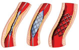 A stent is placed in the narrow portion of the vessel where it is expanded using pressure